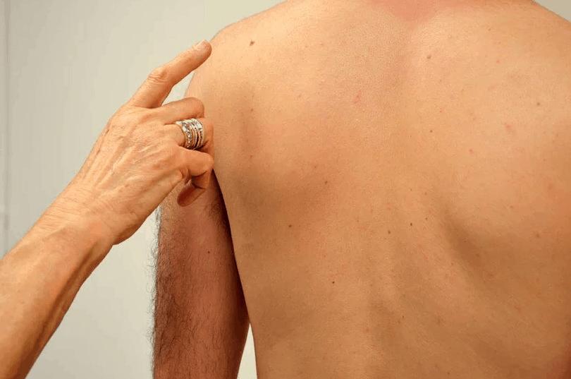 אבחון מוקדם של מלנומה