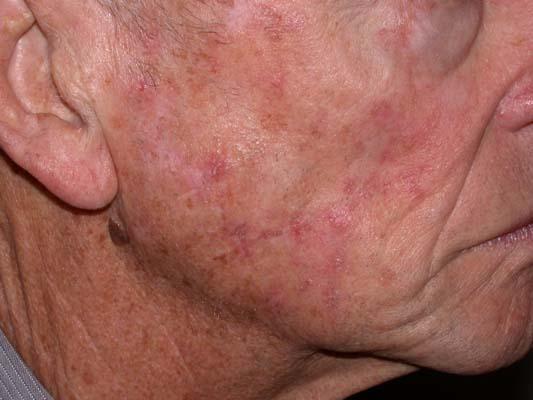Actinic Keratosis הינו נזק שמש נפוץ אשר יכול להתפתח לסרטן העור