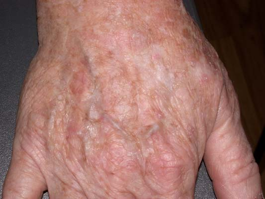 Actinic Keratosis הינונזק שמש נפוץ אשר יכול להתפתח לסרטן העור