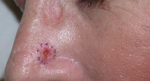 (Basal Cell Carcinoma (BCC – סרטן העור של תאי הבסיס