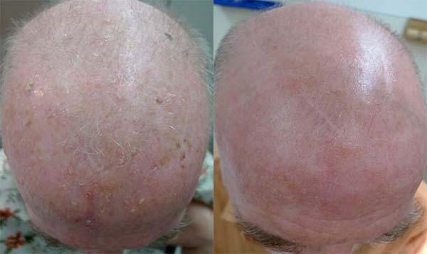 לפני ואחרי טיפול ב Actinic Keratosis - נגעים אשר יכולים להתפתח לסרטן העור