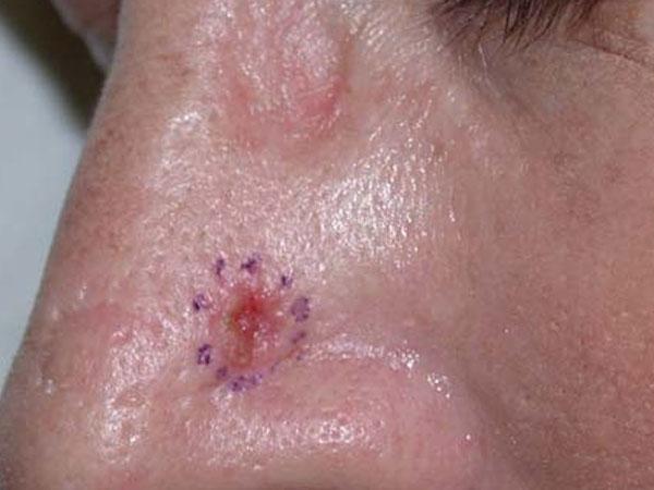 (Basal Cell Carcinoma (BCC – סרטן העור של תאי הבסיס - פצע מדמם לא סדיר שאינו מחלים