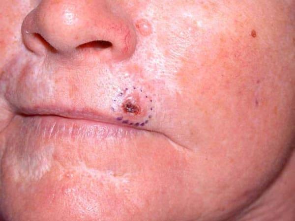 (Basal Cell Carcinoma (BCC – סרטן העור של תאי הבסיס - קשרית מכוייבת לא סדירה שאינה מחלימה