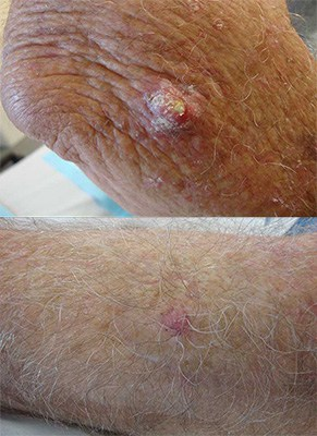 (Squamous Cell Carcinoma (SCC – סרטן העור של תאי הקשקש