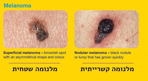 מלנומה קשרייתית ומלנומה שטחית | ספוט קליניק מרפאת עור ומרכז מומחים לרפואת עור