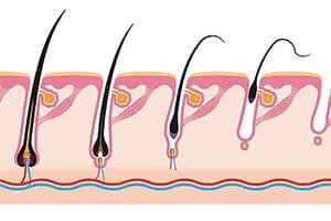 מחלות עור | ספוט קליניק - מרכז מומחים לרפואת עור המטפל בכל סוגי מחלות עור