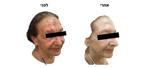 טיפול פוטודינמי · photodynamic therapy · ספוט קליניק מרכז מומחים לרפואת עור