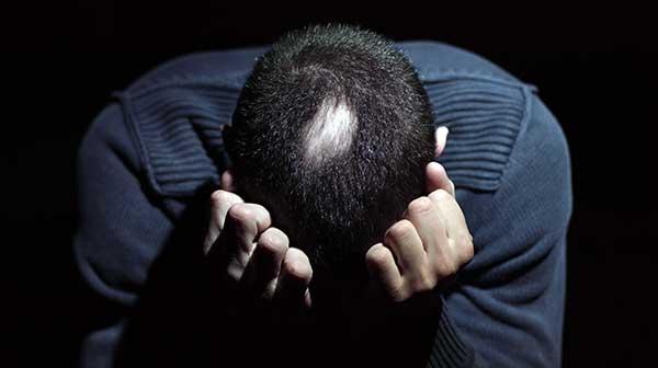 טיפול בהתקרחות עגולה · ספוט קליניק מרכז מומחים לרפואת עור