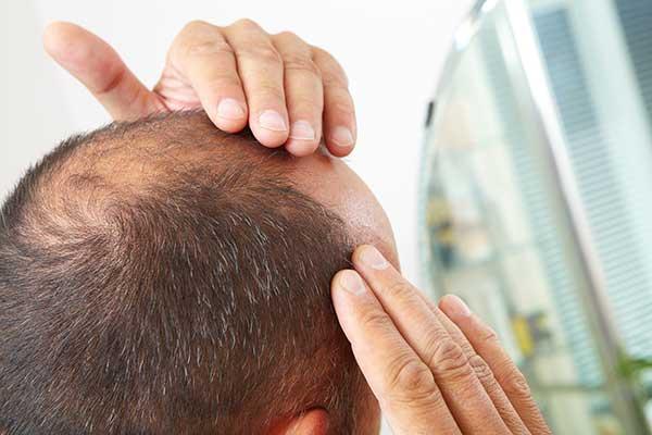 טיפול בהתקרחות גברית · ספוט קליניק מרכז מומחים לרפואת עור