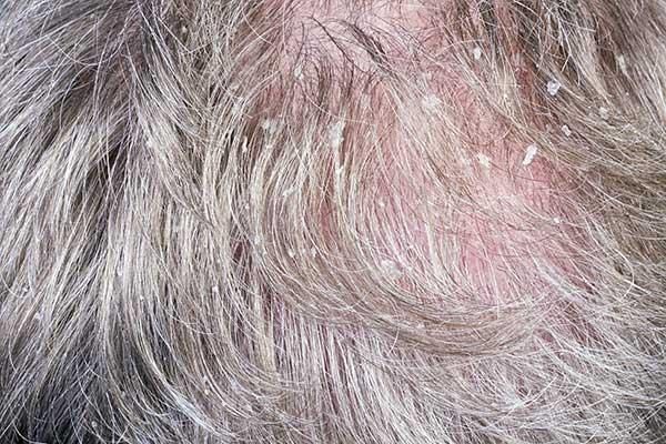טיפול בקשקשת · ספוט קליניק מרכז מומחים לרפואת עור