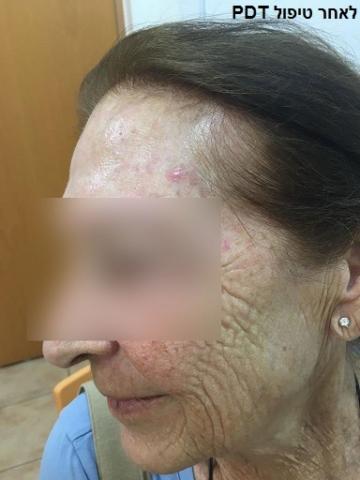 מטופלת (2) לאחר טיפול פוטודינמי