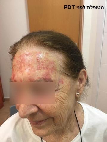מטופלת (2) לפני טיפול פוטודינמי