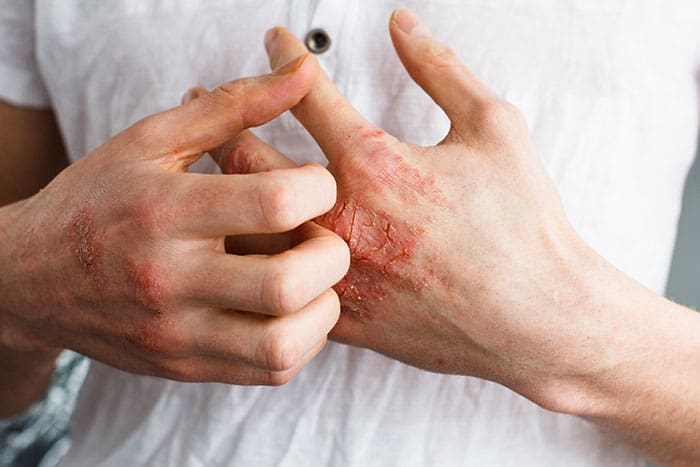 אלרגיה בעור • ספוט קליניק - מיטב המומחים לרפואת עור ולטיפול בתגובה אלרגית