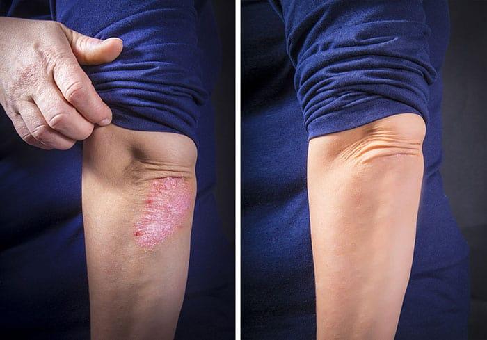 פסוריאזיס - לפני ואחרי טיפול