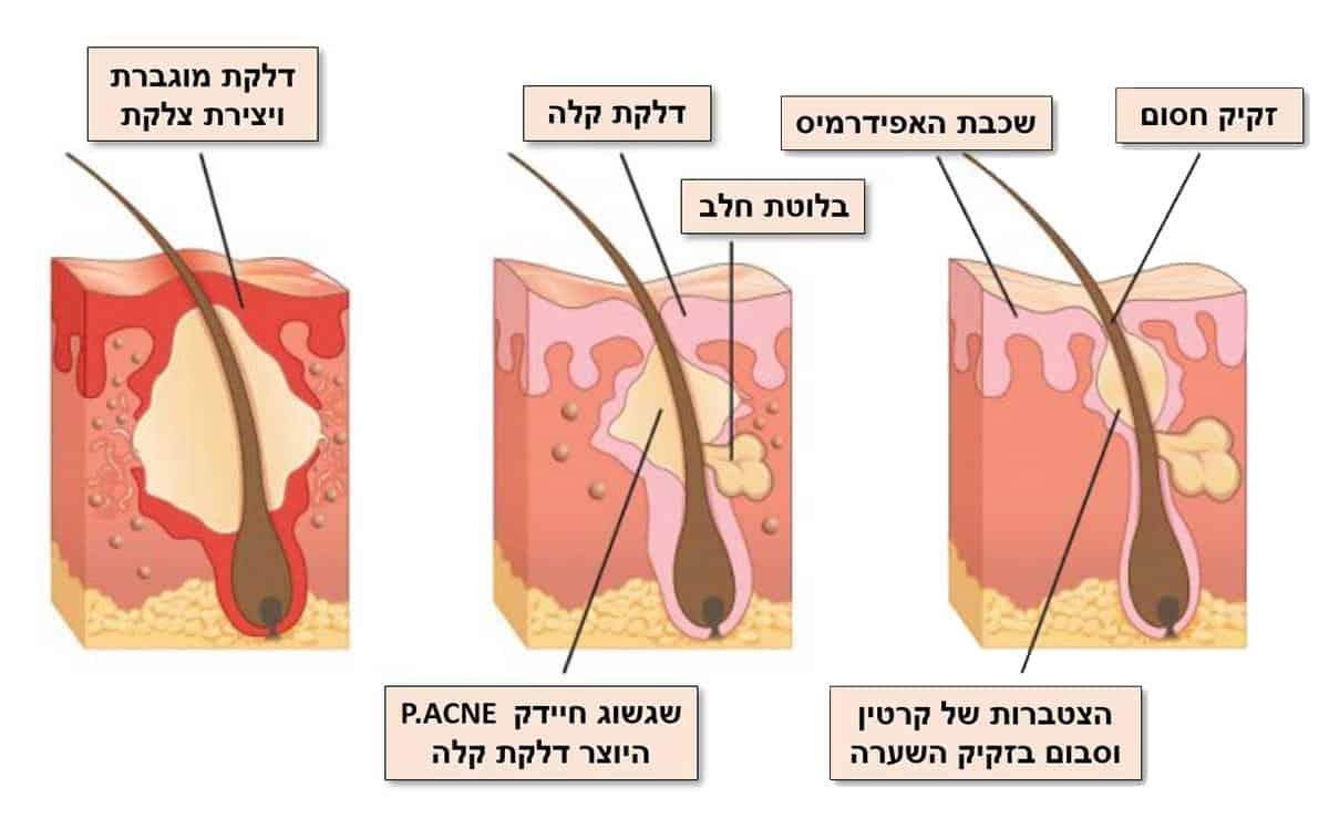 הגורמים לאקנה - ספוט קליניק מרפאת עור פרטית לטיפול באקנה