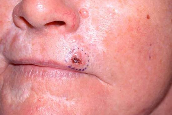 סרטן העור של תאי בסיס - BCC