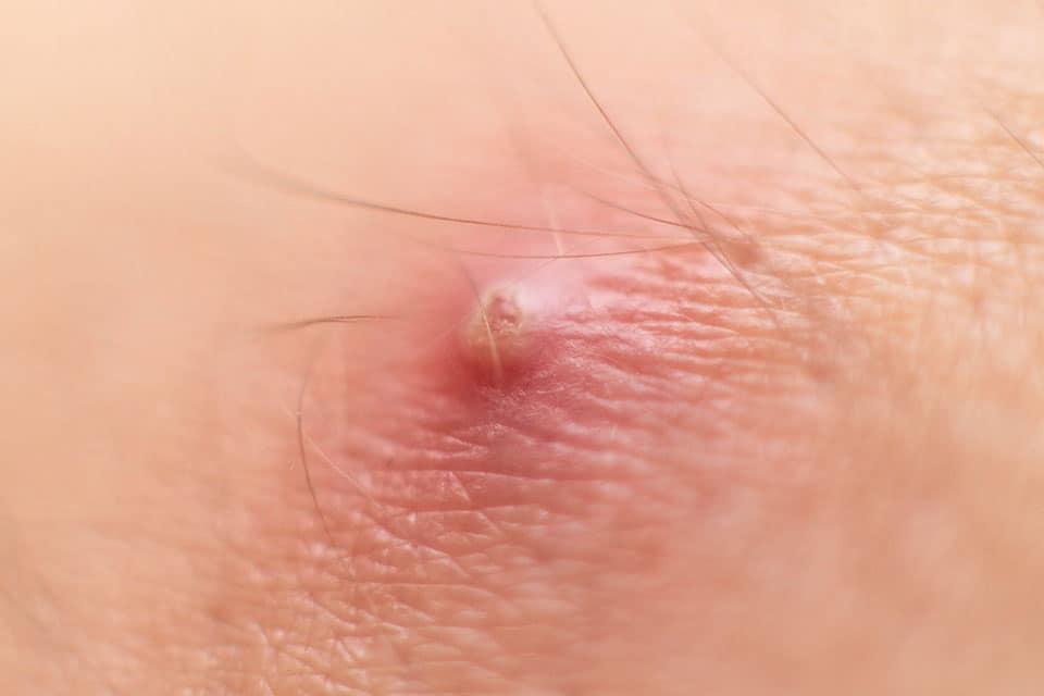 פרונקל • זיהומי עור • ספוט קליניק מרפאה פרטית לרפואת עור
