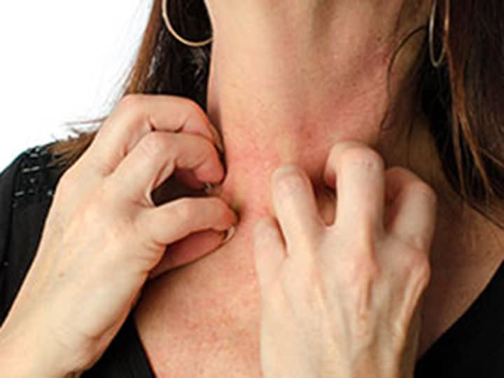 מחלות עור - דלקת עור ממגע