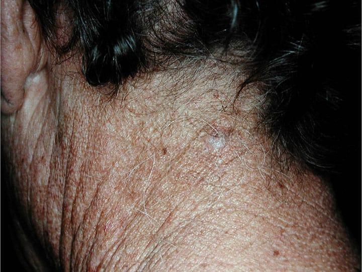 חריצים עמוקים בצואר ובעורף טיפוסים לנזק בלתי הפיך מחשיפה ממושכת לשמש שהביא להתפתחות סרטן עור
