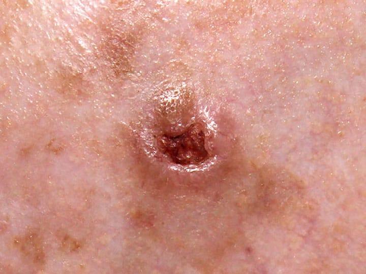 סרטן תאי בסיס מכוייב