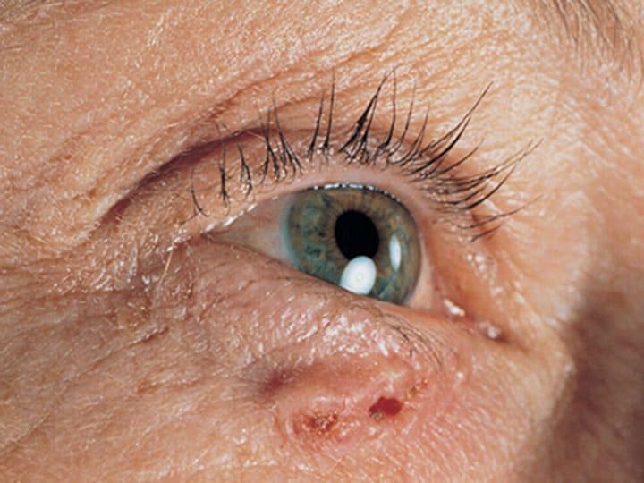 מחלות עור - סרטן תאי בסיס