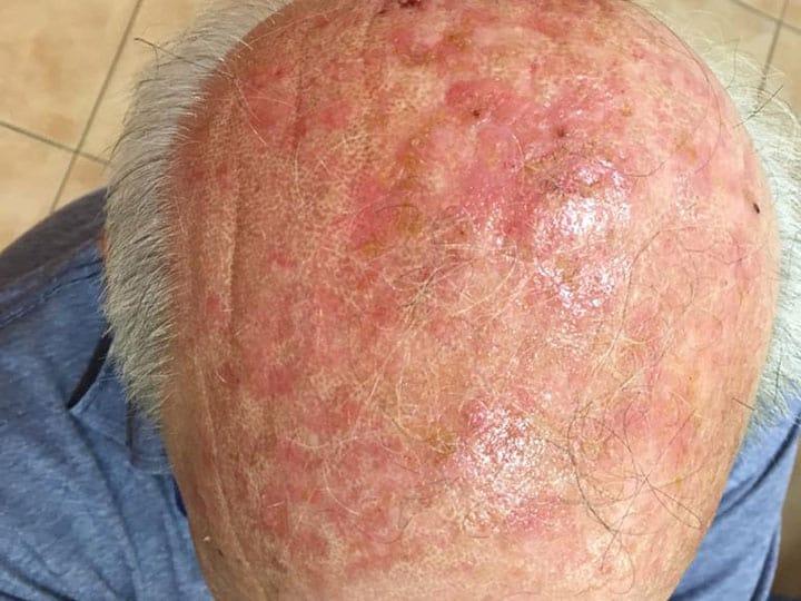קרטוזות מקרובות משמש מכסות את עור הקרקפת