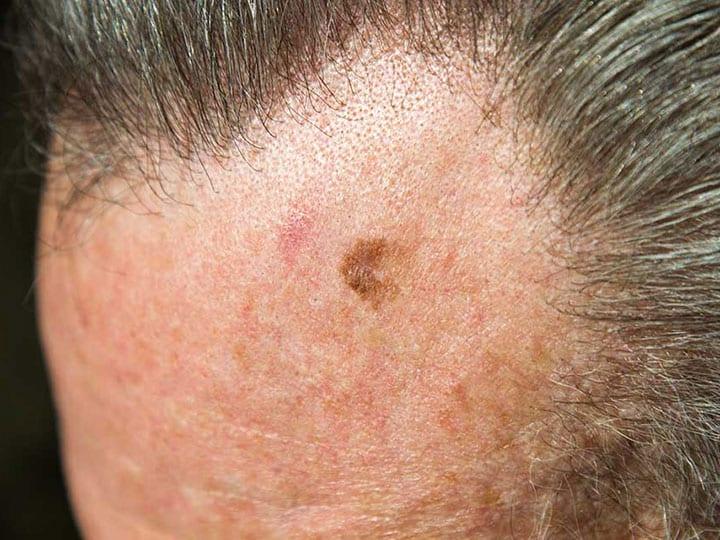 מחלות עור - lentigo maligna