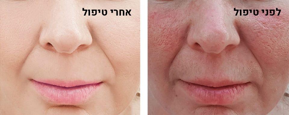 רוזציאה - לפני ואחרי טיפול