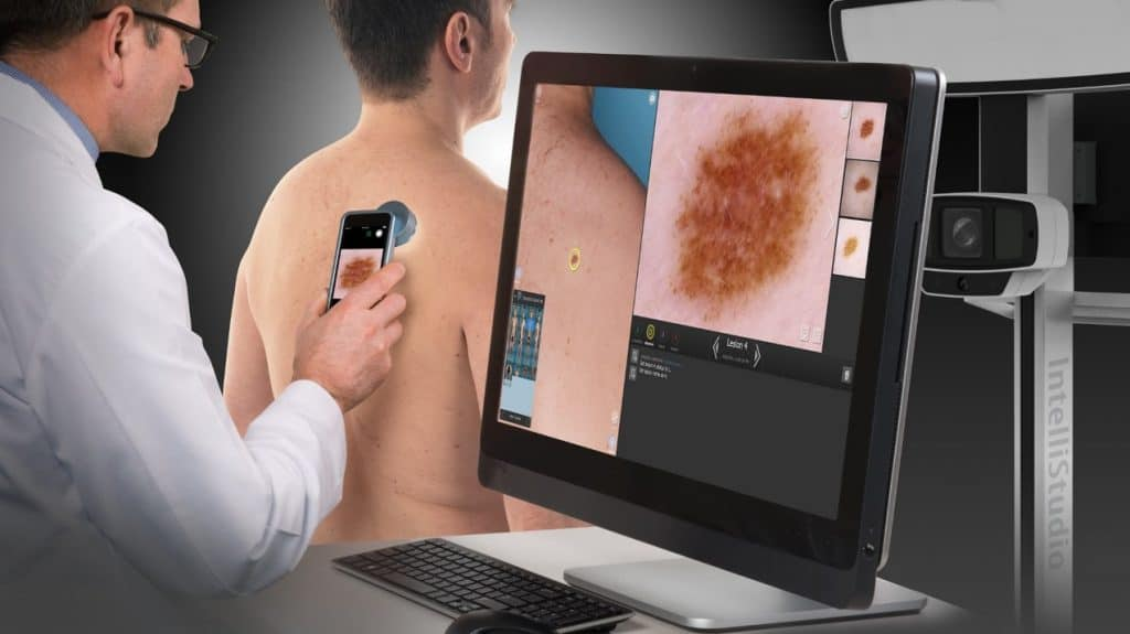 מיפוי שומות ממוחשב של DermaGraphics